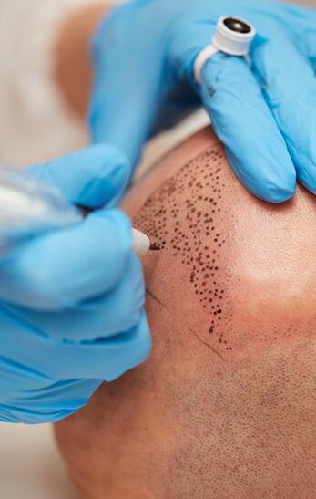Dermatopigmentologie